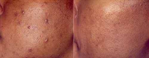 Photodynamic Acne Treatment: Before And After Photos