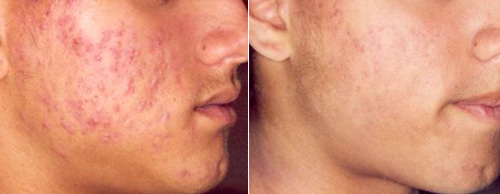 Photodynamic Acne Treatments Using Levulan Ala Pdt