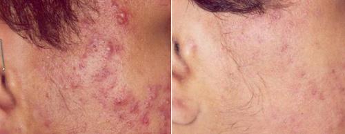 Photodynamic Acne Treatments Using Levulan Ala Pdt
