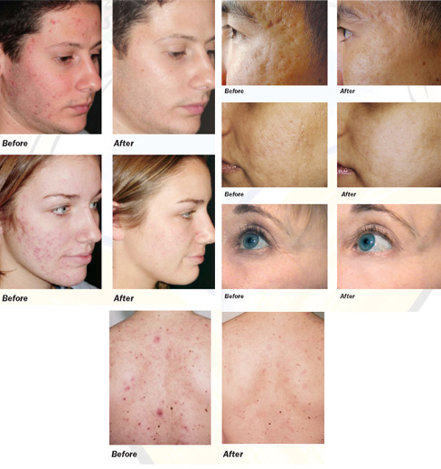 Smooth Beam Acne Treatment Before and After