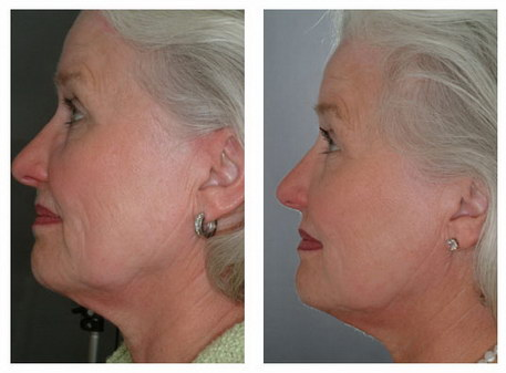 Non-Surgical Facelift in Detroit